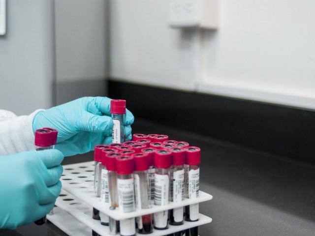 Confirmades dos veïnes d'Ibi primers casos de coronavirus a l'àrea de salut d'Alcoi